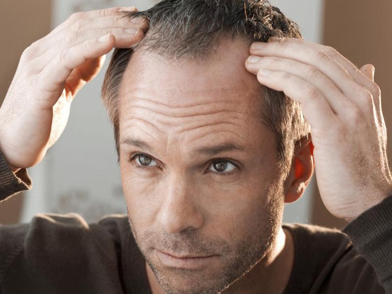Saçlarınız Kök Hücre İle Yenileniyor